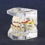 Демонстраційна модель зубів (для ортодонтів)