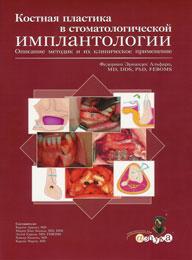 Кісткова пластика в стоматології. Опис методик та їх клінічне застосування.