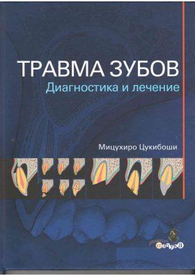 Травма зубів. Діагностика і лікування.