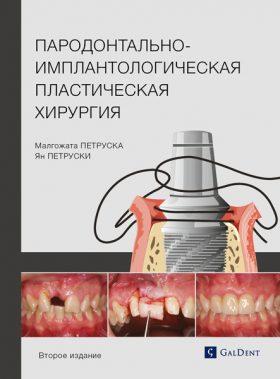 Пародонтально-імплантологічна пластична хірургія
