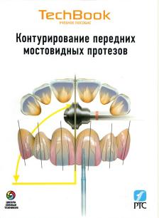 Контурування передніх мостовидних протезів