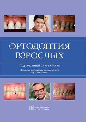 Ортодонтія для дорослих