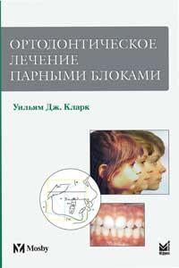 Ортодонтичне лікування парними блоками