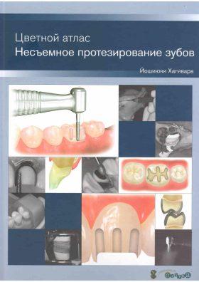 Кольоровий атлас. Незнімне протезування зубів.