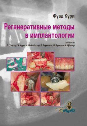 Регенеративні методи в імплантології
