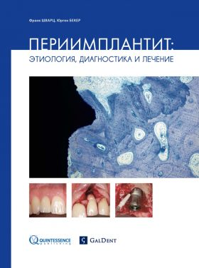 Періімплантит: Етіологія, діагностика та лікування.