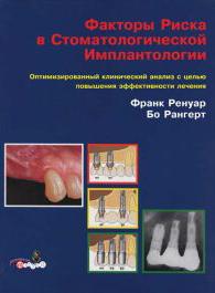 Фактори ризику в стоматологічній імплантології