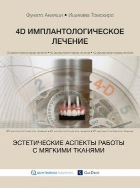 4D імплантологічне лікування: естетичні аспекти роботи з м'якими тканинами