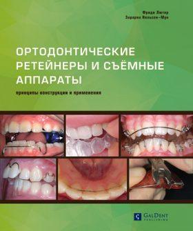 Ортодонтичні ретейнери і знімні ортодонтичні апарати. Принципи конструкції і застосування.