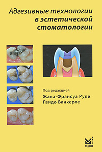 Адгезивні технології в естетичній стоматології