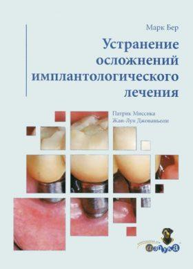 Усунення ускладнень імплантологічного лікування